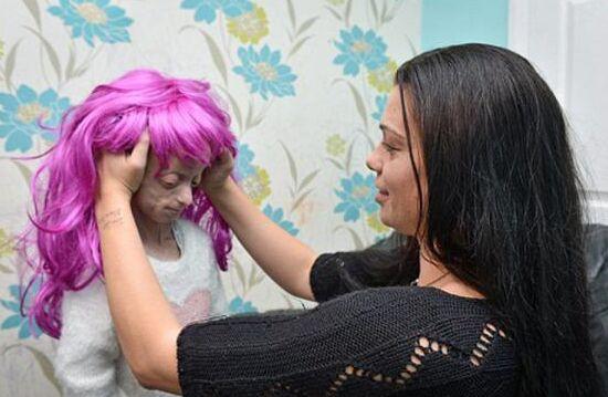 11岁女童患罕见怪病 外貌似80岁老 面目狰狞如同怪物