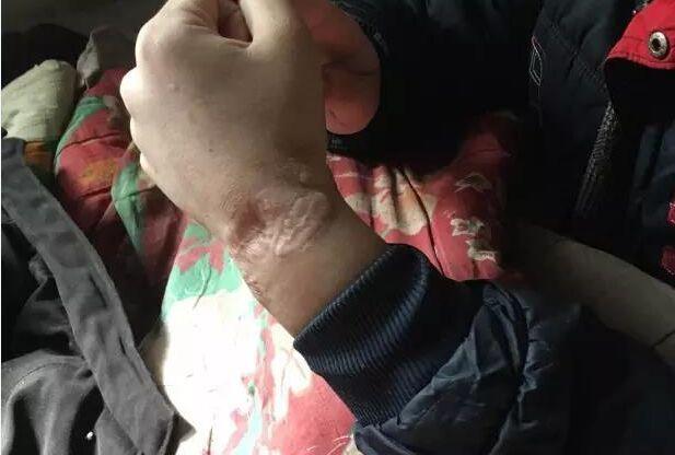 17岁男孩被铁链锁2年 铁链子长肉里(组图)