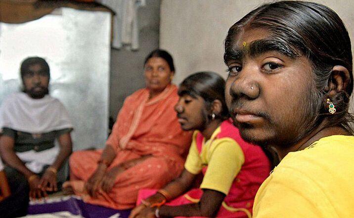 """在印度出生的三姐妹因患""""多毛症""""被同学讥讽为""""狼人""""(图)"""