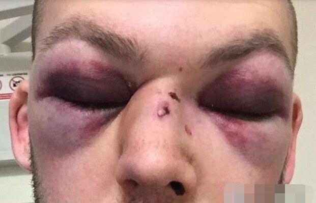 业余板球运动员训练时被球击中脸部15处骨头骨折